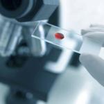 Лейкемия: когда диагностируется и как минимизировать риски заболевания